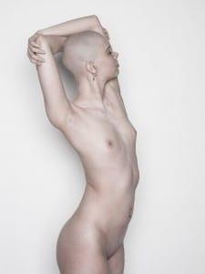 weiblicher Akt mit Glatze